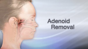 tonsils and adenoids removal